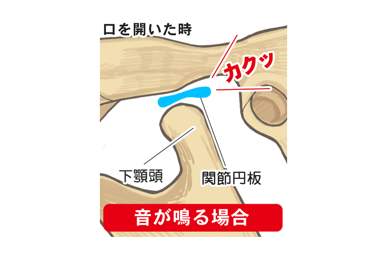 新潟県長岡市の山田歯科クリニックでは顎関節症の治療を行っております。