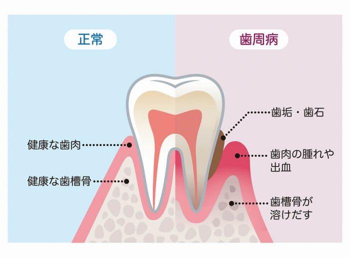 そもそも歯周病とは?