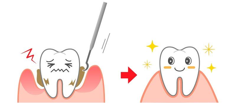歯石除去でお口を綺麗にしたい方は新潟県長岡市の山田歯科クリニックまでお越しください