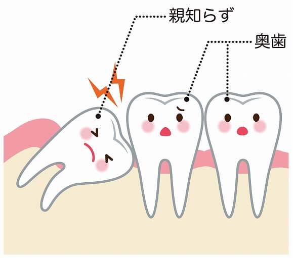長岡市で親知らずの抜歯なら山田歯科クリニックへ